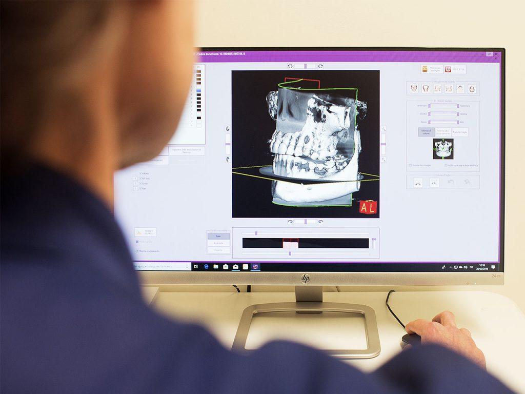 Tomografia 3d Cone Beam a Caserta Dr. Antonio Barbato