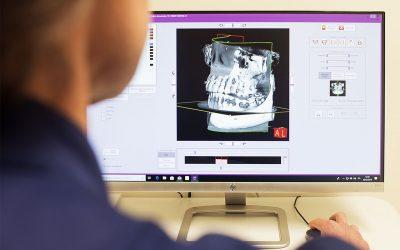 ConeBeam, quanto è importante l'utilizzo della diagnostica 3D