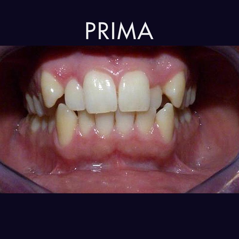 Intervento di ortodonzia a Caserta - Prima