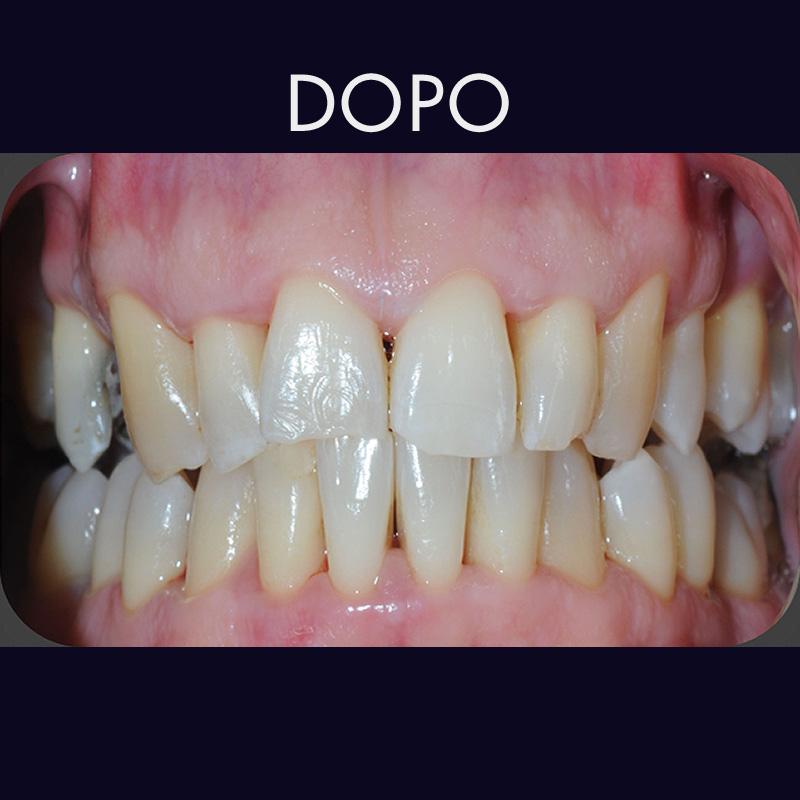 Pulizia denti con polveri speciali
