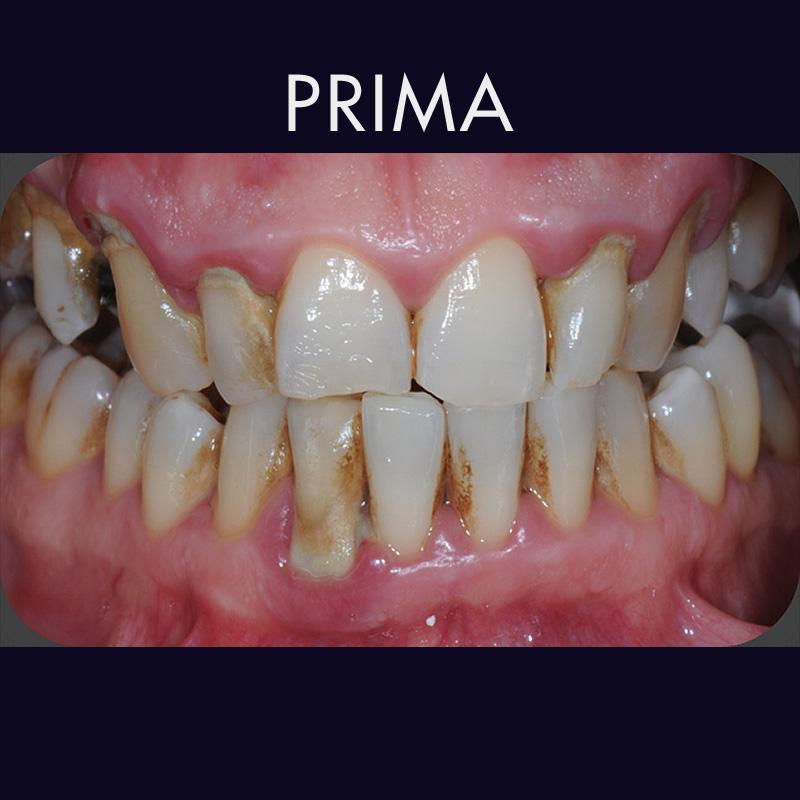 Pulizia denti con polveri speciali - Prima