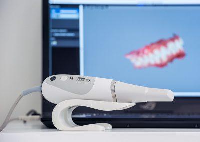 Endonzia con scanner laser a Caserta Dr. Antonio Barbato