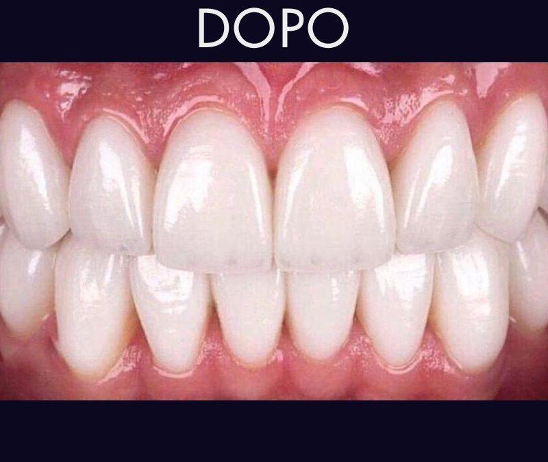 Le faccette dentali in ceramica regalano un sorriso libero da imperfezioni