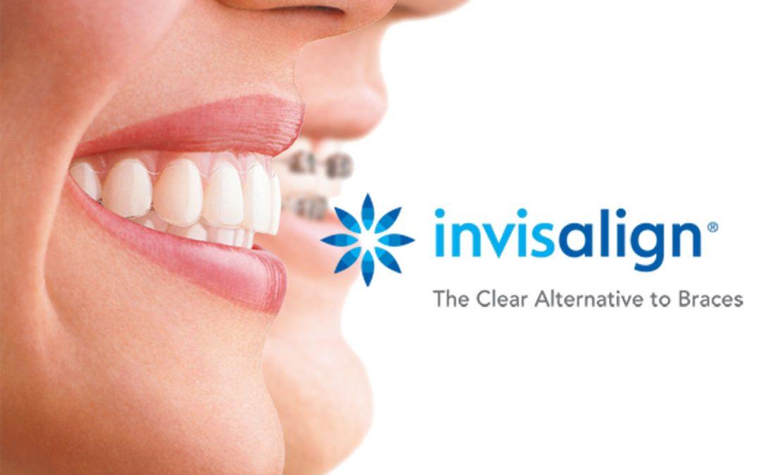 Ortodonzia, con Invisalign sorridere non sarà più un problema